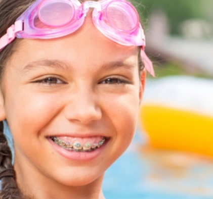Orthodontics for teens and kids