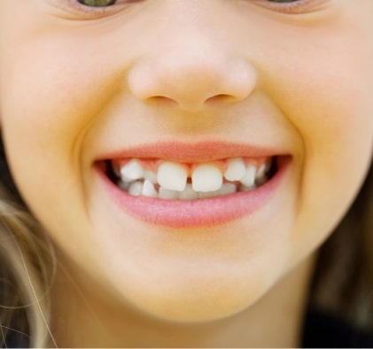 Preventive Dental Treatments for kids and teens