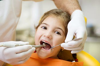 Cavities Caries pediatric dentist Brooklyn NY